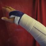 Broken Wrist update